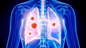 New Drug For Lung Cancer 300x168 Texas Cbd Law   What You Shoud Know
