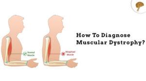 muscular dystrophy treatment