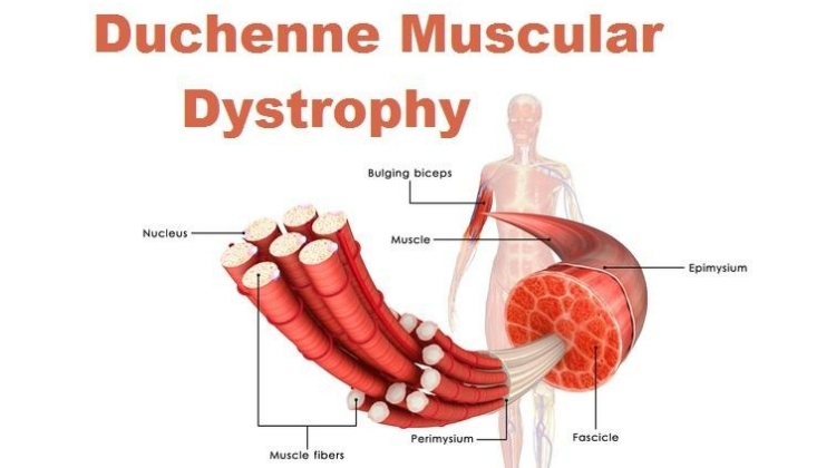 muscular dystrophy treatment