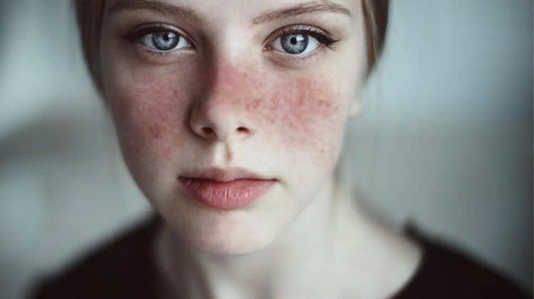 best cbd oils for lupus