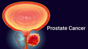 Natural Treatment For Prostate Cancer