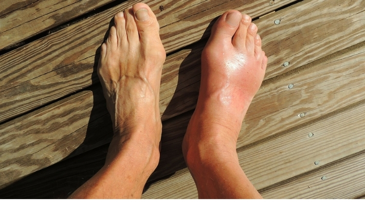 CBD For Gout